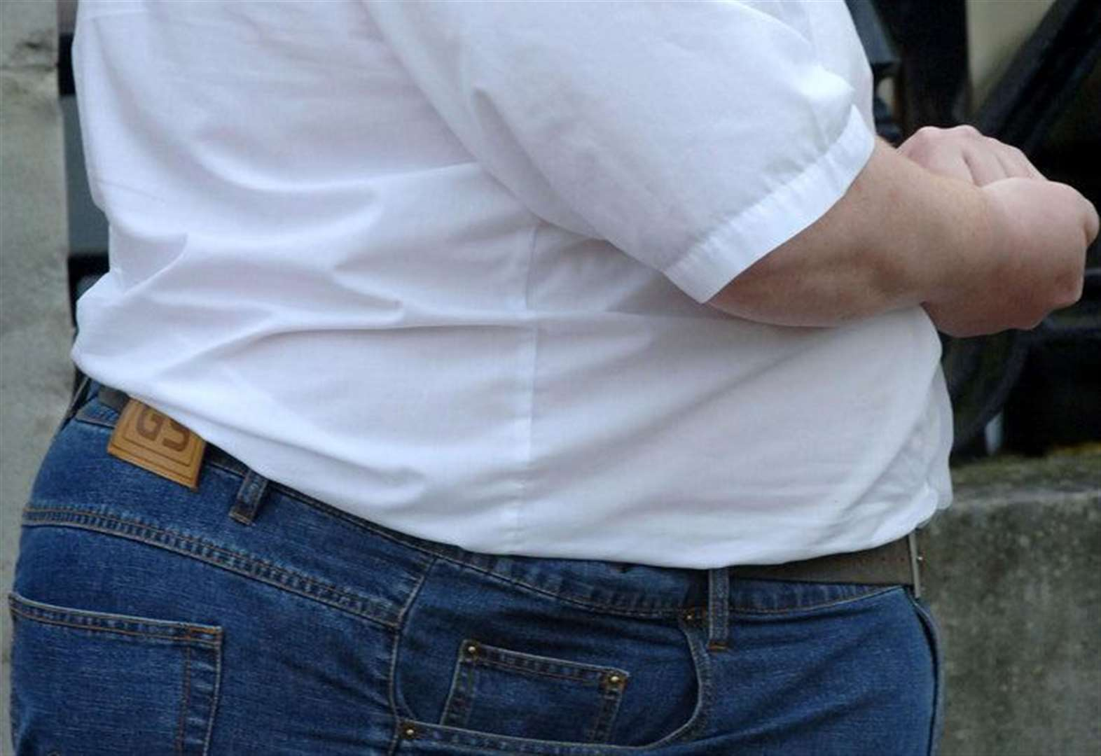 Rate of obese hospital patients down in Cambridgeshire