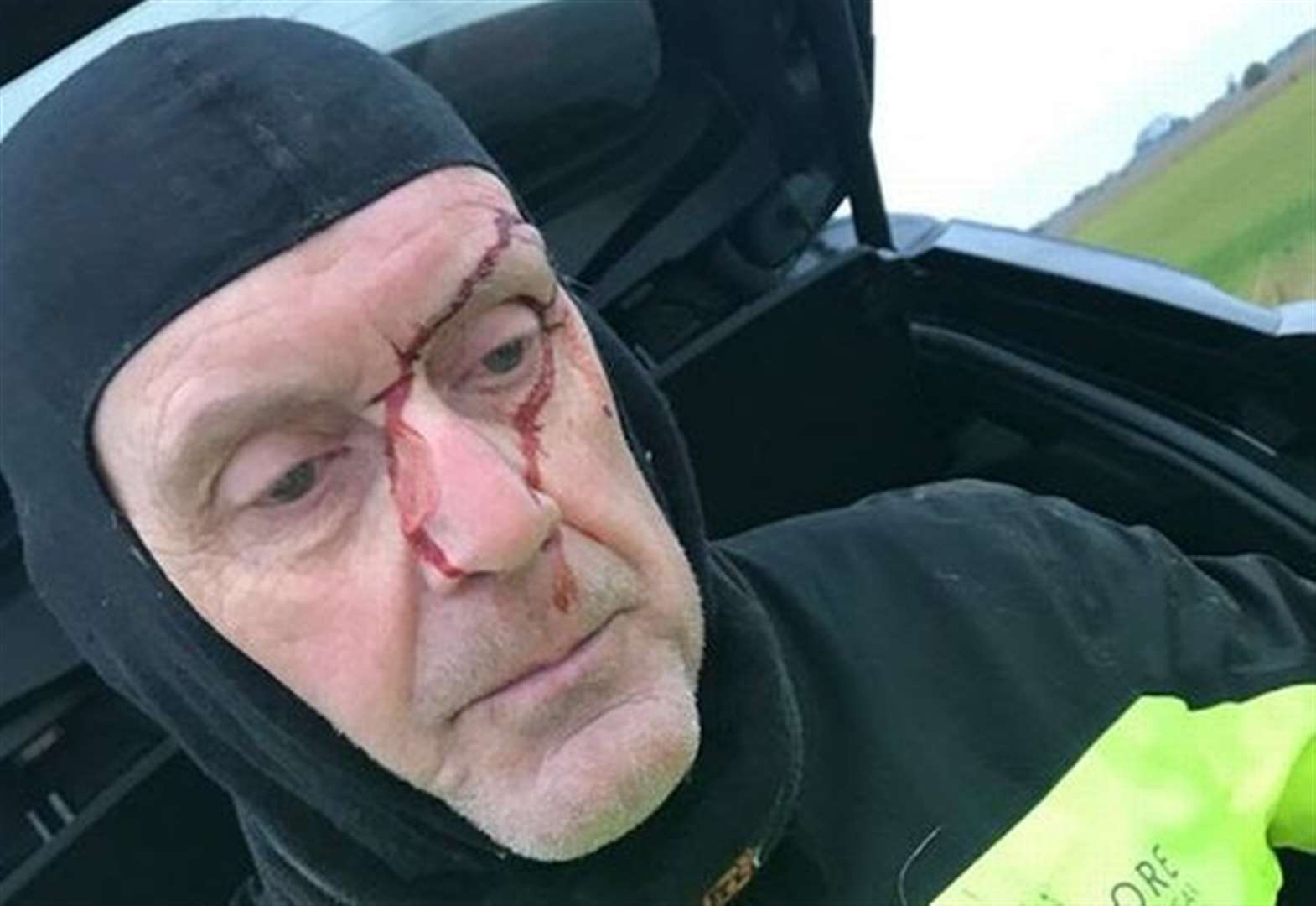 Gorefield grandfather suffers gash to head in unprovoked attack as he was cycling now family are appealing for help to catch his attackers