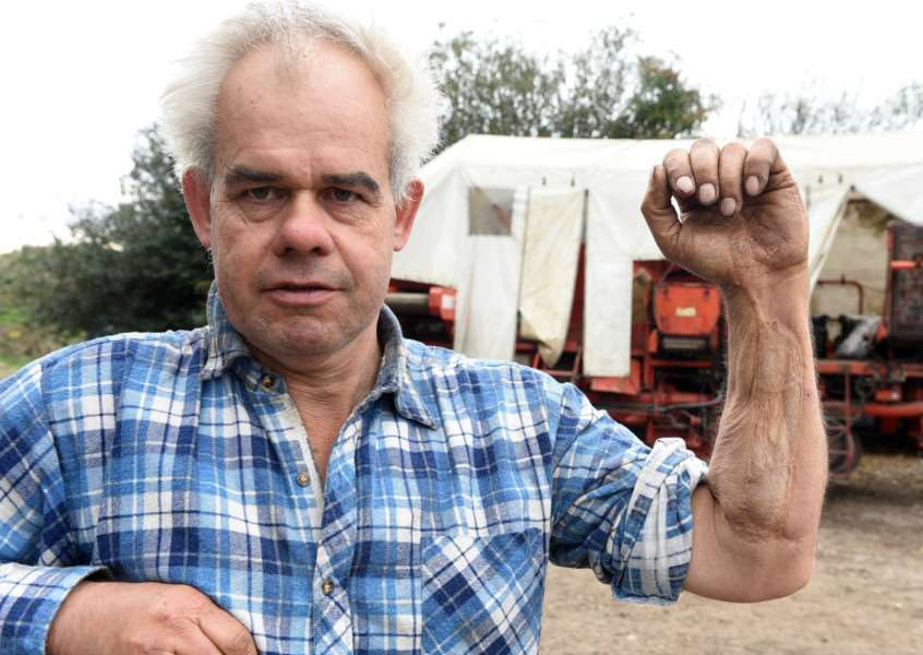 George Munns shows the scar on his arm left after a serious farming accident involving the potato harvester pictured behind him.